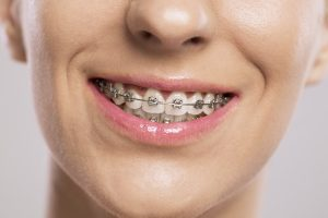 Here's how to find a qualified orthodontist in Mullica Hill.