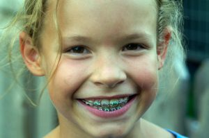Is it time for my child to go to the orthodontist in Mullica Hill?